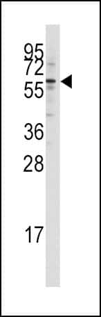 TIP60 Antibody in Western Blot (WB)