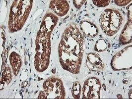KCNAB1 Antibody in Immunohistochemistry (Paraffin) (IHC (P))