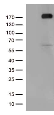 KDR Antibody in Western Blot (WB)