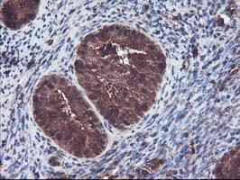 KEAP1 Antibody in Immunohistochemistry (Paraffin) (IHC (P))