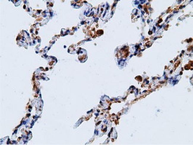 KHK Antibody in Immunohistochemistry (Paraffin) (IHC (P))