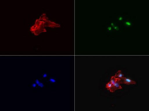 KI67 Antibody in Immunofluorescence (IF)