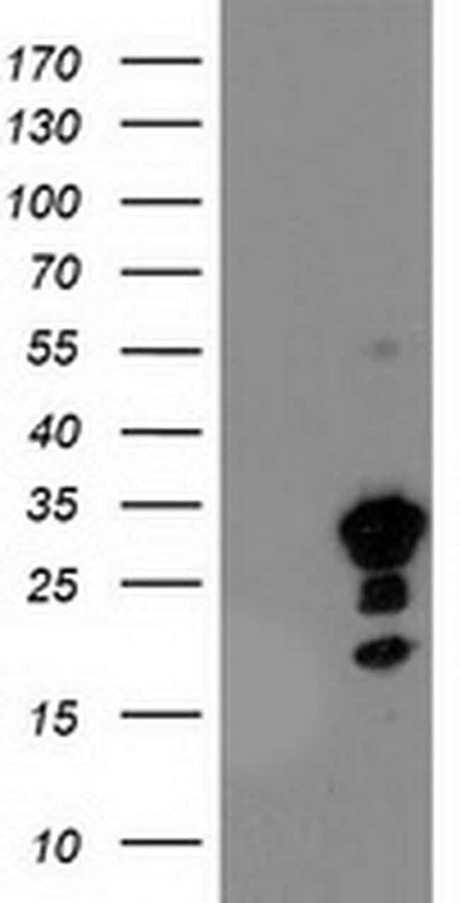 KIAA0495 Antibody in Western Blot (WB)