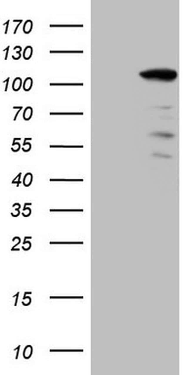 KIAA1524 Antibody in Western Blot (WB)