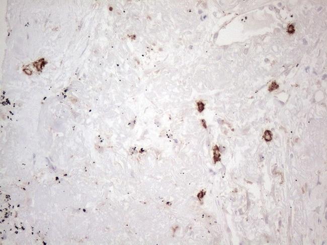 KIT Antibody in Immunohistochemistry (Paraffin) (IHC (P))