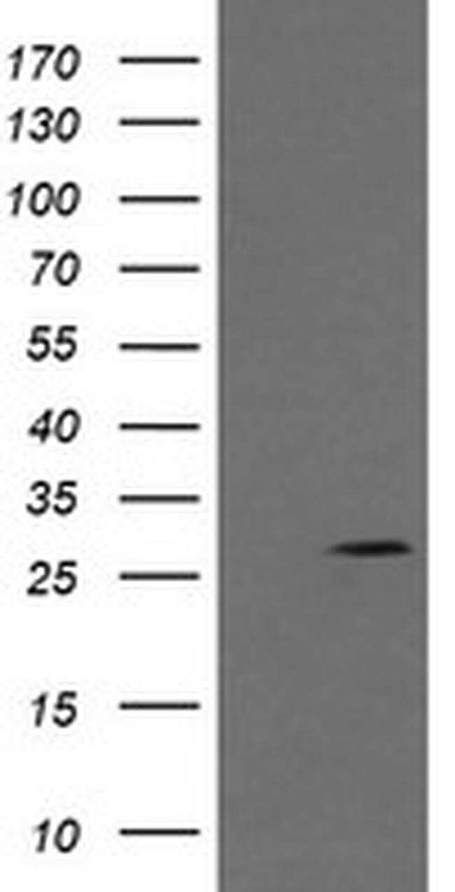 KLK8 Antibody in Western Blot (WB)