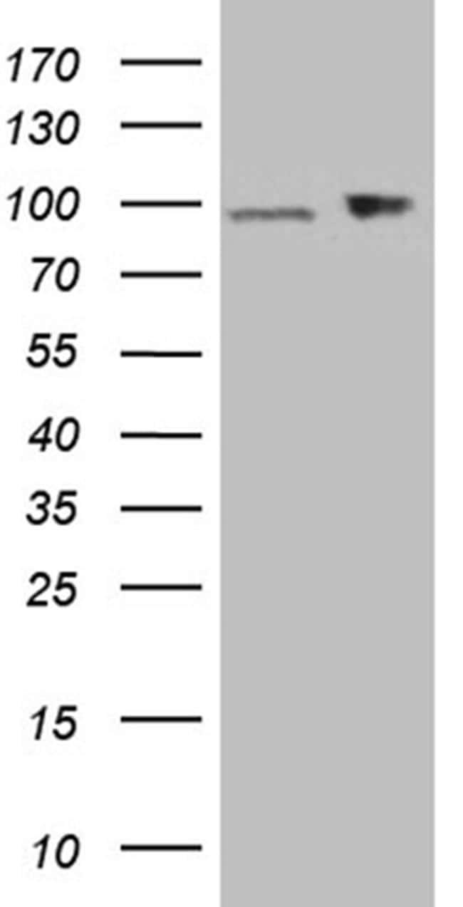 KPNB1 Antibody in Western Blot (WB)