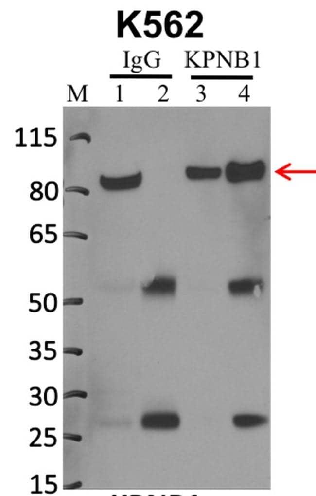Importin beta-1 Antibody in Immunoprecipitation (IP)
