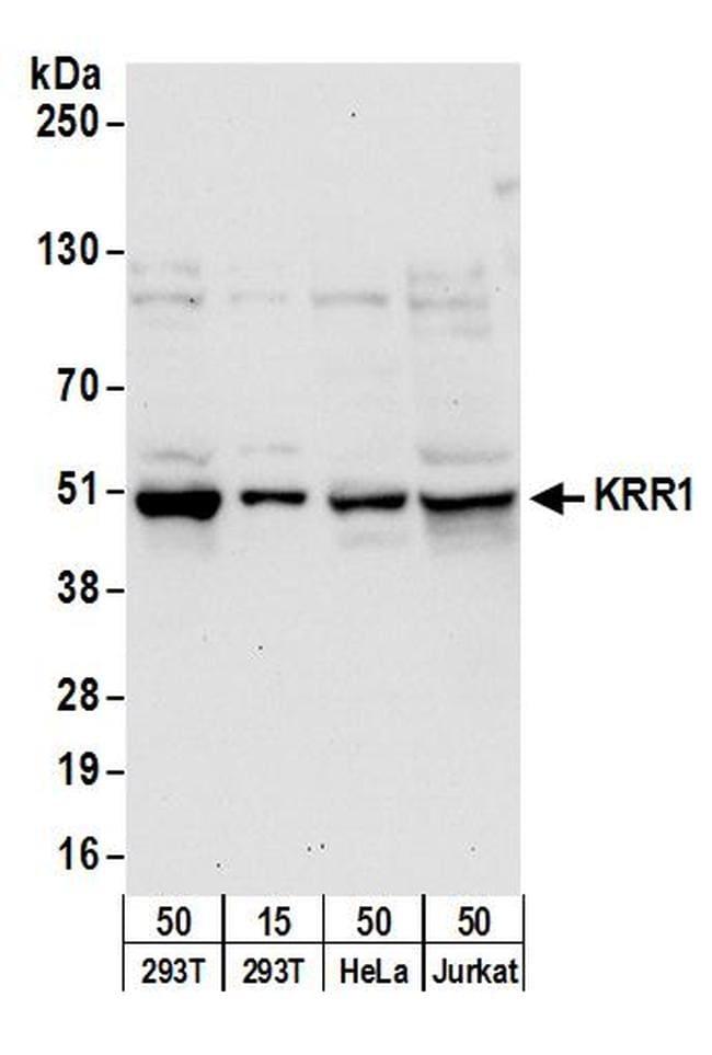 KRR1 Antibody in Western Blot (WB)