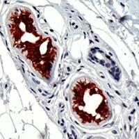 Cytokeratin 18 Antibody in Immunohistochemistry (IHC)