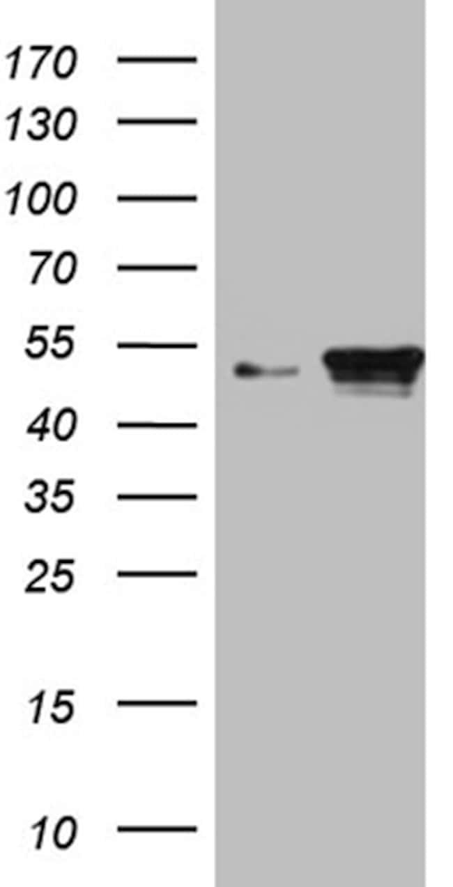 KRT18 Antibody in Western Blot (WB)