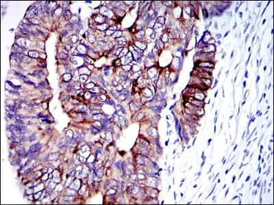 Cytokeratin 19 Antibody in Immunohistochemistry (IHC)