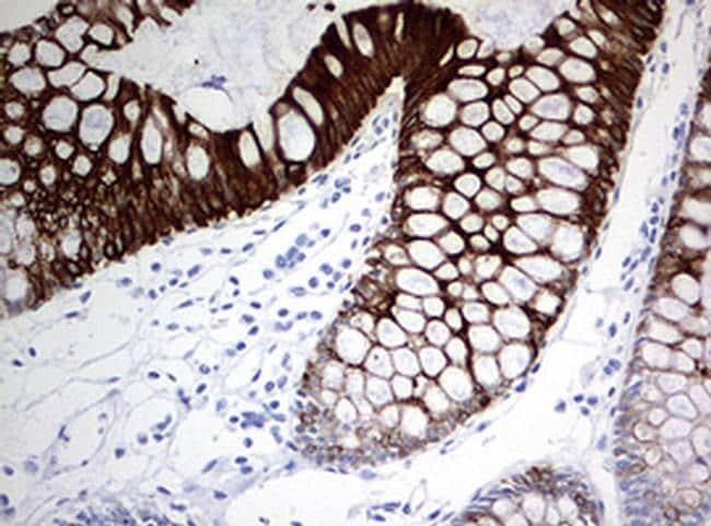 KRT20 Antibody in Immunohistochemistry (Paraffin) (IHC (P))