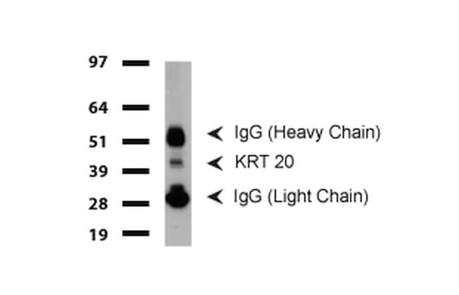 KRT20 Antibody in Western Blot (WB)