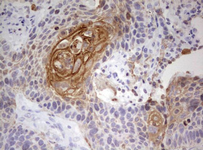 KRT7 Antibody in Immunohistochemistry (Paraffin) (IHC (P))