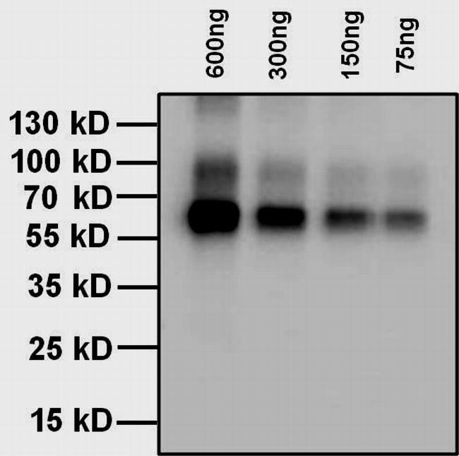 Fermentas Pageruler Prestained Protein Ladder 26616 Best