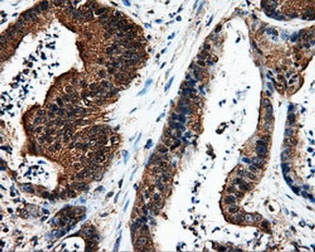 L1CAM Antibody in Immunohistochemistry (Paraffin) (IHC (P))