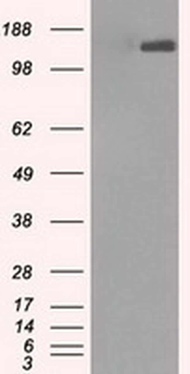 L1CAM Antibody in Western Blot (WB)