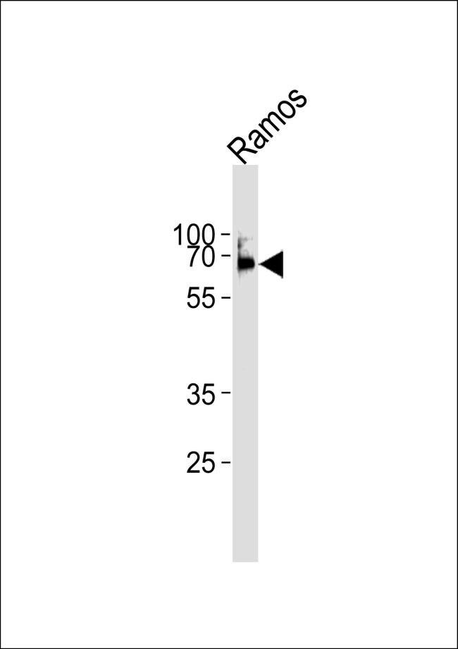 LCK Antibody in Western Blot (WB)
