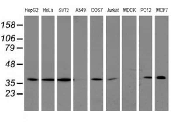 LCMT1 Antibody in Western Blot (WB)