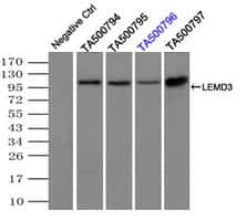 LEMD3 Antibody in Immunoprecipitation (IP)