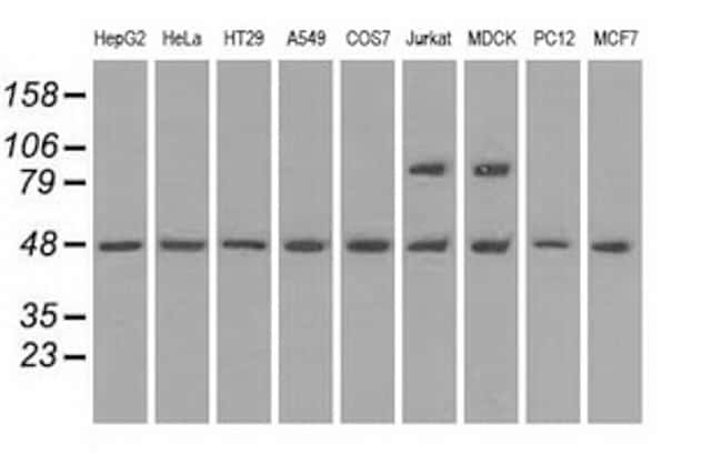 LEMD3 Antibody in Western Blot (WB)