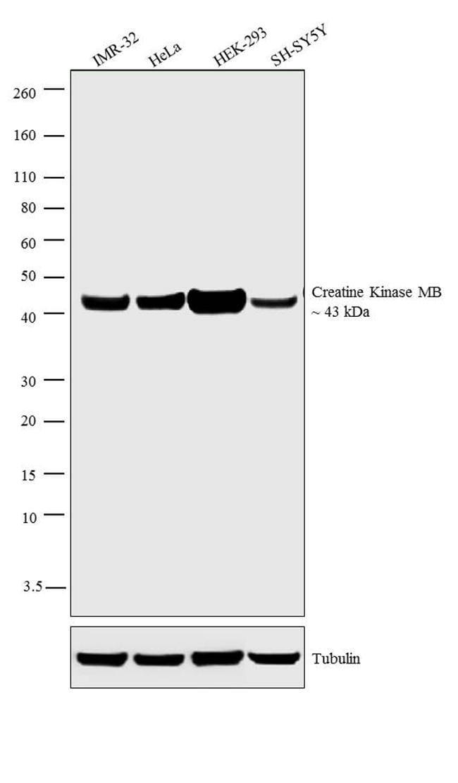 Creatine Kinase MB Antibody in Western Blot (WB)