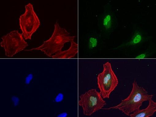 LGALS3 Antibody in Immunocytochemistry (ICC/IF)