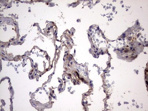LGALS3 Antibody in Immunohistochemistry (Paraffin) (IHC (P))