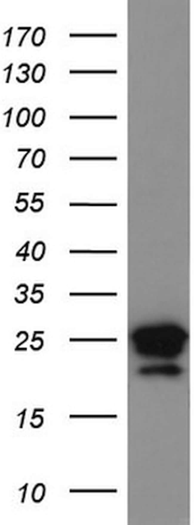 LGALS3 Antibody in Western Blot (WB)