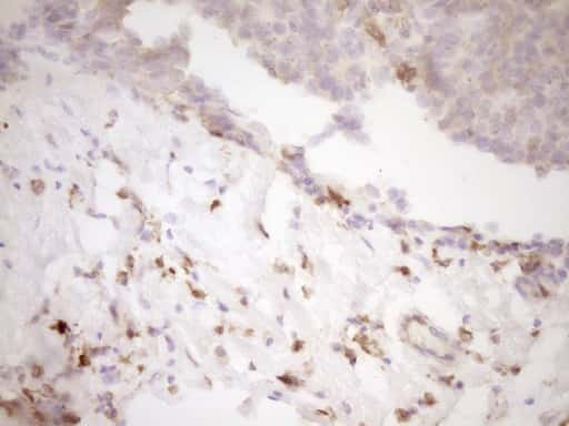 LGALS9 Antibody in Immunohistochemistry (Paraffin) (IHC (P))