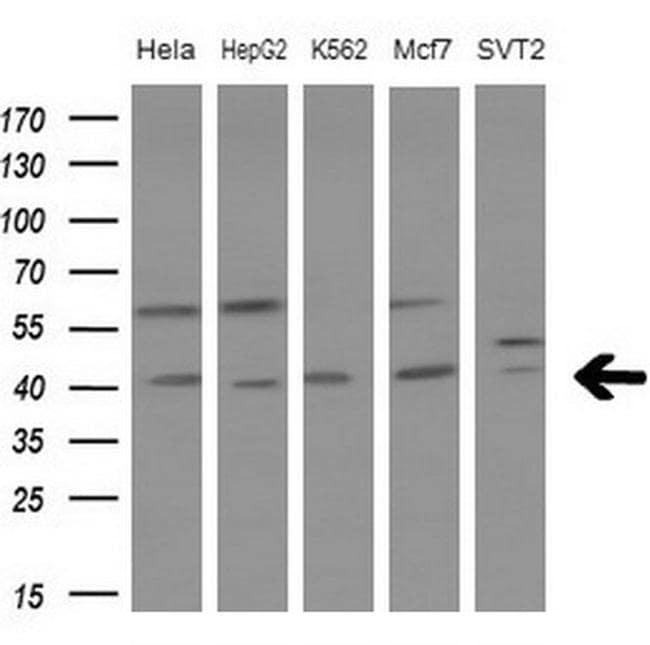 LGALS9 Antibody in Western Blot (WB)
