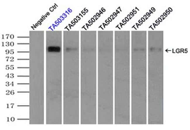LGR5 Antibody in Immunoprecipitation (IP)
