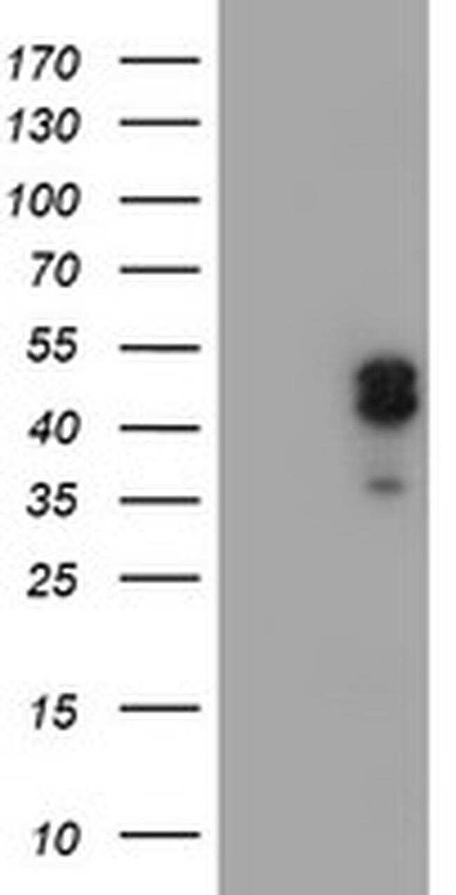 LHX1 Antibody in Western Blot (WB)