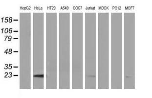 LIN7B Antibody in Western Blot (WB)