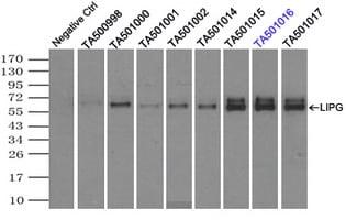 LIPG Antibody in Immunoprecipitation (IP)