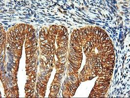 LMAN1 Antibody in Immunohistochemistry (Paraffin) (IHC (P))