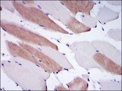 Lamin A/C Antibody in Immunohistochemistry (IHC)