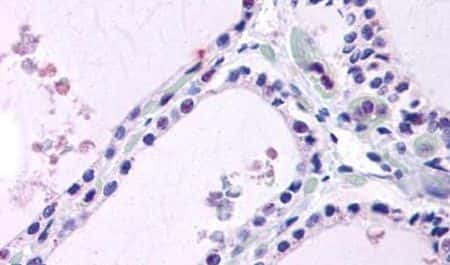 LPCAT1 Antibody in Immunohistochemistry (Paraffin) (IHC (P))