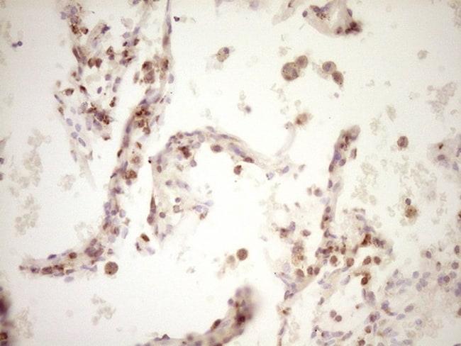 LPIN1 Antibody in Immunohistochemistry (Paraffin) (IHC (P))