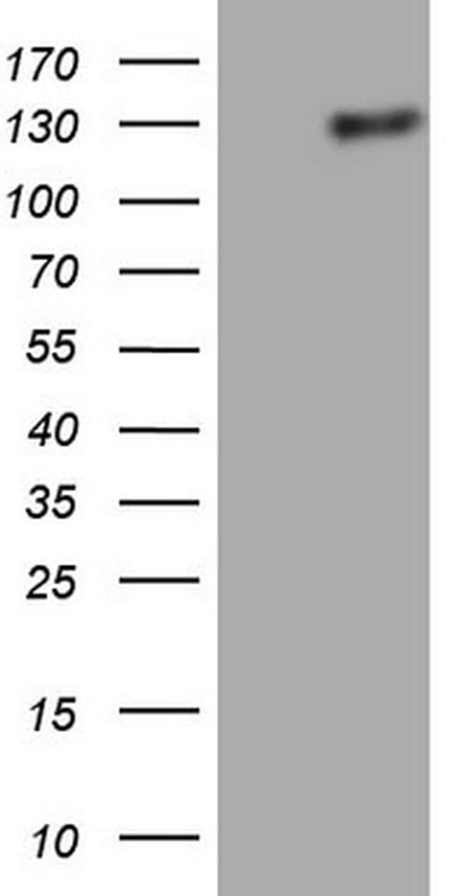 LPIN1 Antibody in Western Blot (WB)