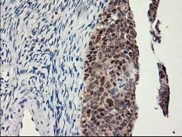 LPL Antibody in Immunohistochemistry (Paraffin) (IHC (P))