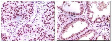 LSD1 Antibody in Immunohistochemistry (IHC)