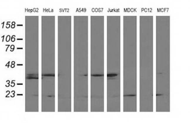 LSM1 Antibody in Western Blot (WB)