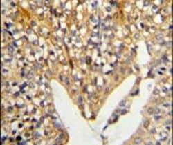 LUM Antibody in Immunohistochemistry (IHC)