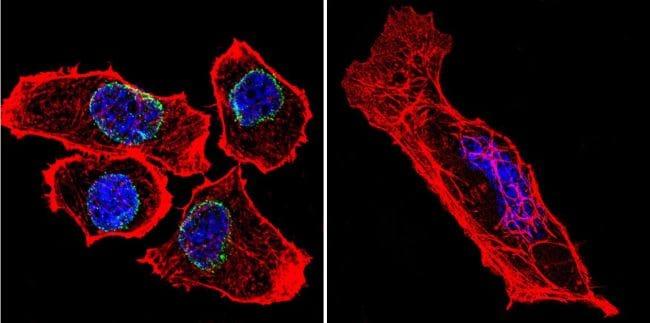Lamin A/C Antibody in Immunofluorescence (IF)