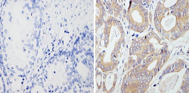 RhoA/RhoB/RhoC Antibody in Immunohistochemistry (Paraffin) (IHC (P))