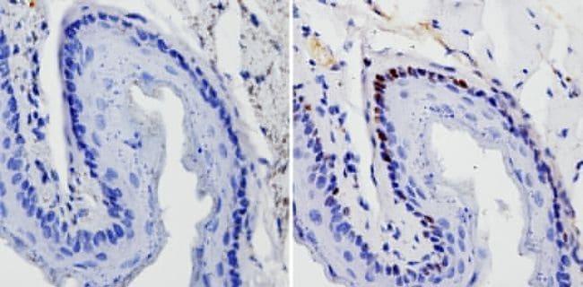 SOX2 Antibody in Immunohistochemistry (Paraffin) (IHC (P))