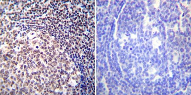 NFATC2 Antibody in Immunohistochemistry (IHC)
