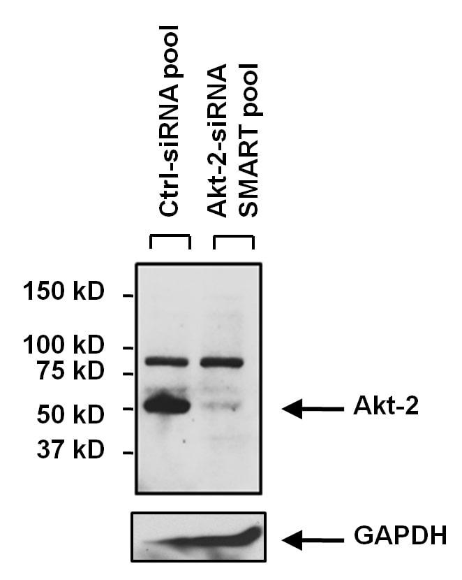 AKT2 Antibody in KnockDown